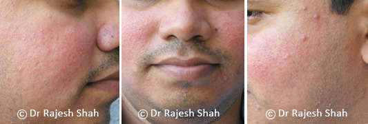 acne rosacea on face and its treatment with homeopathy