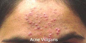 Acne Vulgaris on Forehead