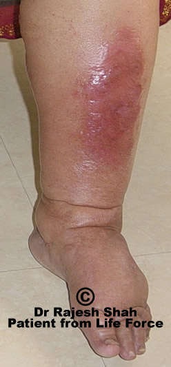Homeopathy treatment for cellulitis