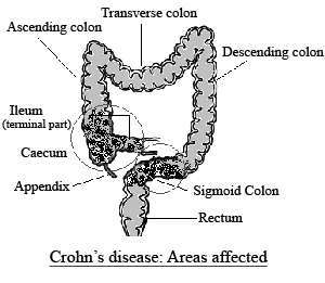 Crohn's disease areas affected