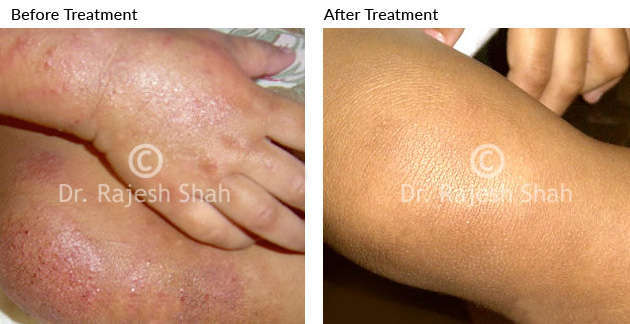 Treatment for Eczema on Legs, before and after treatment photo