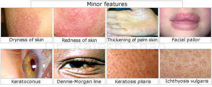Eczema Diagnosis Minor Features