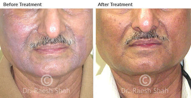 Eczema photodermatitis on face before after treatment