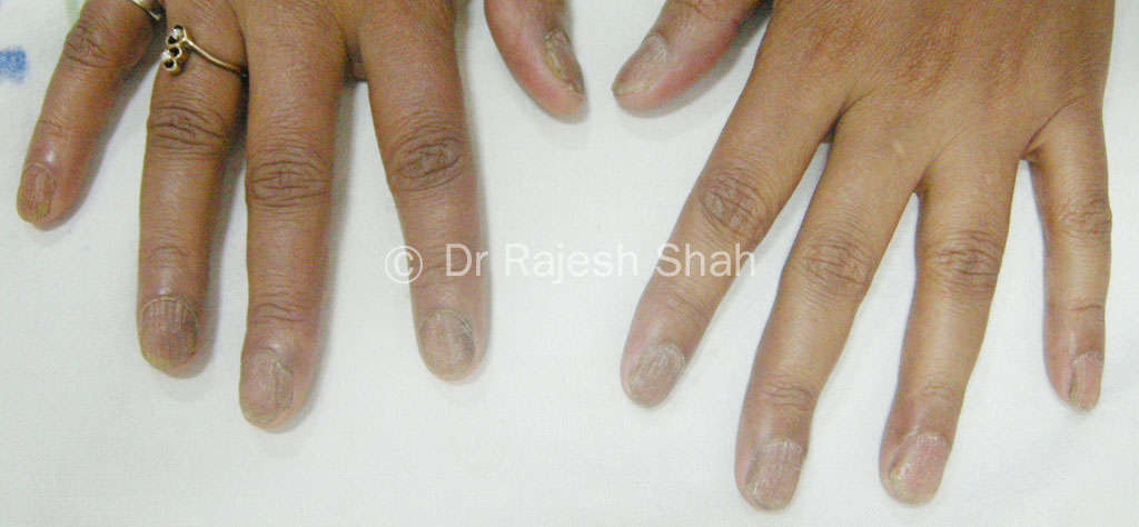 Onychomycosis Treatment, Causes, Diagnosis, Homeopathic