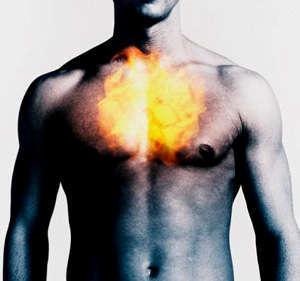 Homeopathy Heartburn