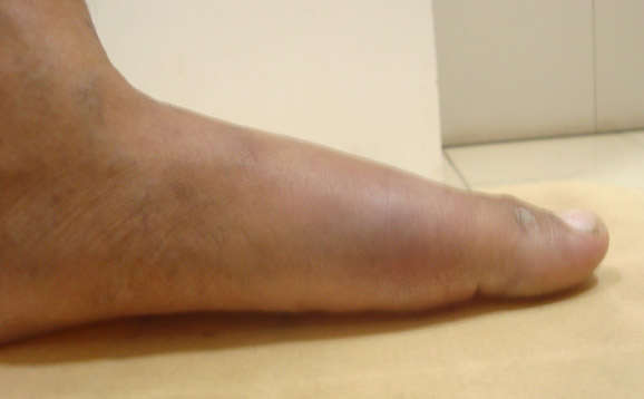 Homeopathy treatment for gout