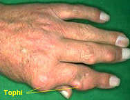 Gout on fingers