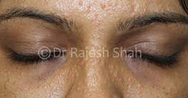 Treatment for Granulomatous Rosacea