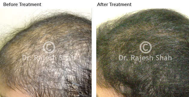 Hair fall recovery before and after treatment photo