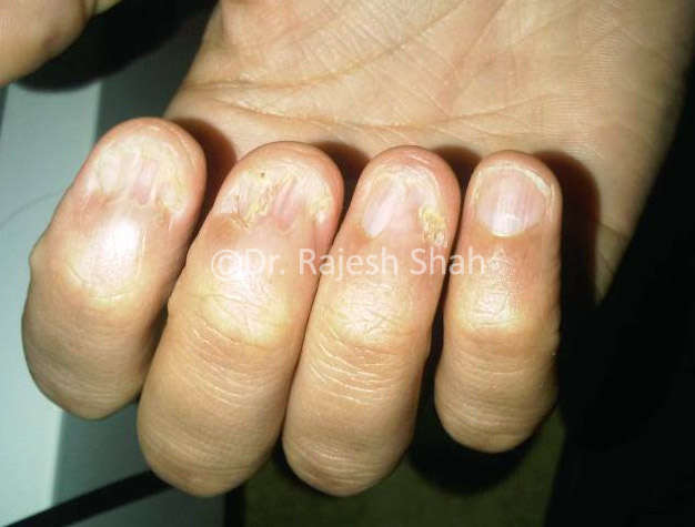 Nail Lichen Planus: Causes, Symptoms & Treatment for LP on Nails