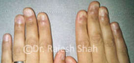 Lichen Planus on Hands Nails