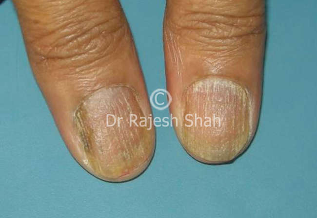The Majority Of Nails Changes Results From Damage To Nail Matrix Or Root Can Occur With Without Skin Involvement