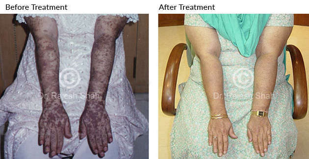Lichen Planus on Hands: Before & After Treatment