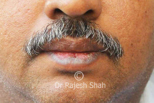 Lichen Planus on Lips