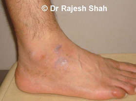 lichen planus diagnosis