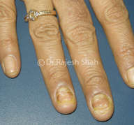 Lichen Planus on Finger Nails