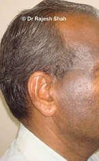 Lichen planus pigmentosa on face