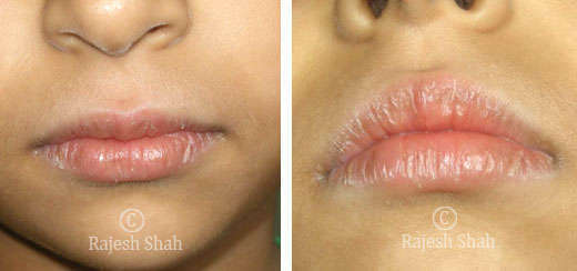 Cheilitis on lips