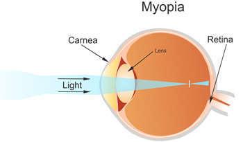 Symptoms of Myopia