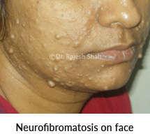 Neurofibromatosis on face