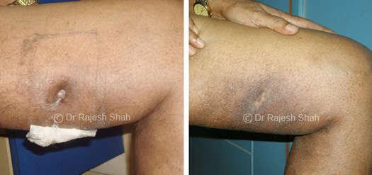 non healing ulcer