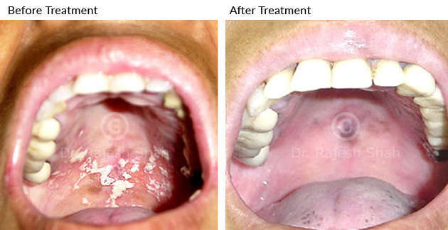 oral_lichen_planus_before_after_4