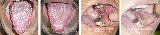 Oral Lichen Planus on Tongue & Gums Before After Treatment