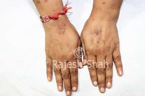 Prurigo Nodularis on hands, fingers