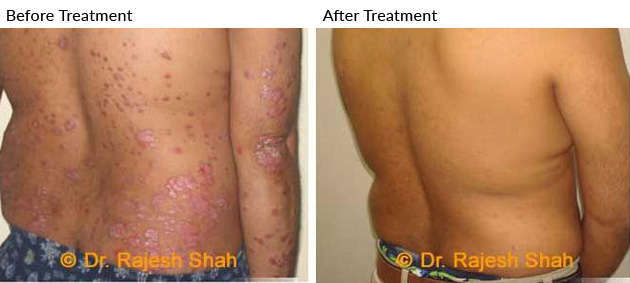 Psoriasis Homeopathic Treatment