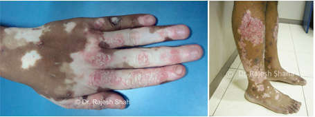 psoriasis with vitiligo on hand