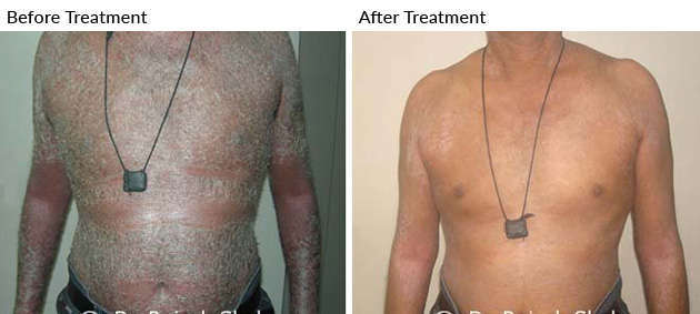 psoriasis_before_after_2