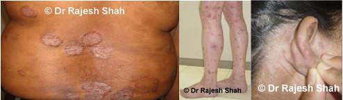 psoriasis on legs