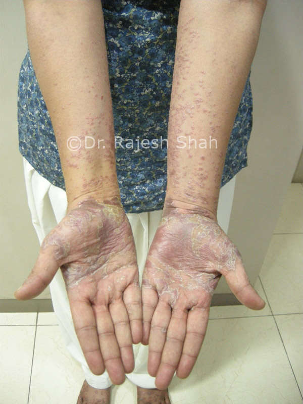 lichen planus and psoriasis in palms