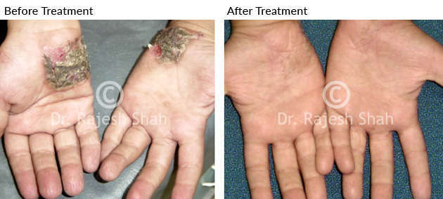 psoriasis_palms_before_after_4