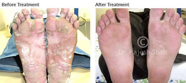 psoriasis_soles_before_after_4