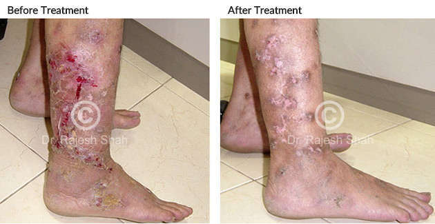 pyoderma legs before and after
