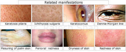 Atopic dermatitis related manifestations symptoms