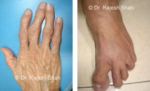Rheumatoid Arthritis in Legs