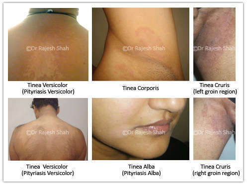 tinea demonstrating