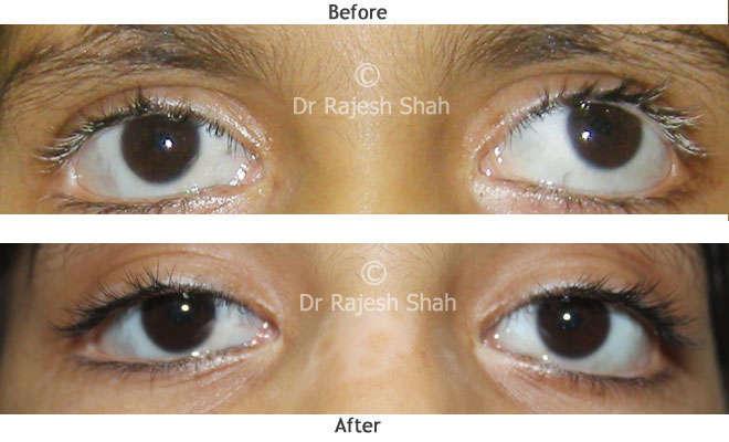 Vitiligo on eye lashes before and after treatment photo