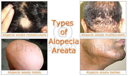 alopecia areata types