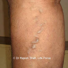 Varicose veins symptoms & treatment
