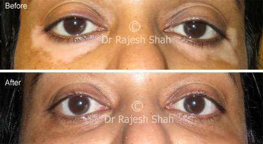 Vitiligo below eyes before and after treatment