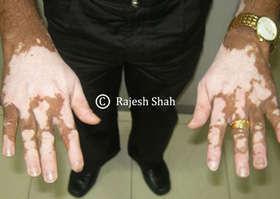 Vitiligo on Fingers and Back of Palms