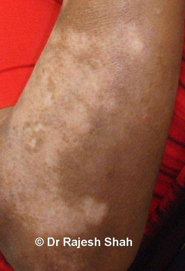 Homeopathic Medicine for Treatment Of Vitiligo (Leucoderma)