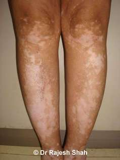 Vitiligo spots on legs