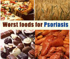 Worst foods for Psoriasis