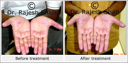 Eczema on Palms, before and after treatment