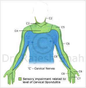 Sensory implement related to cervical spondylitis