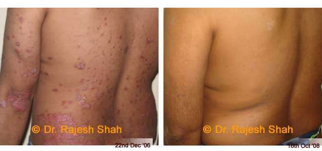 Skin Disease Treatment Effects